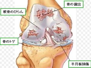 変形性膝関節症と診断された!もしくは膝が長年痛い!