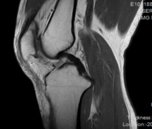膝の痛みの原因 ~画像所見(レントゲン・MRI)~